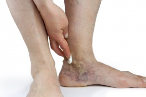 Varicose veins of the foot1